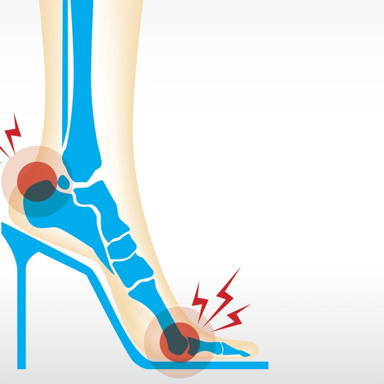 High Heel X-Ray Illustration.jpg