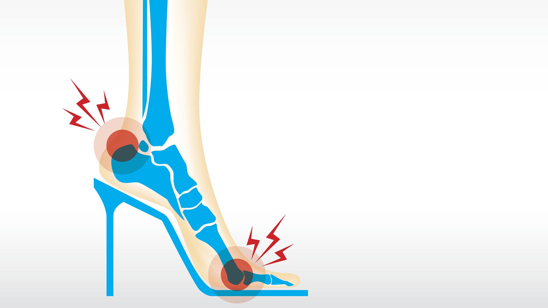 3 Of The Most Common Foot Problems How To Fix Them High Heel Pain Arch Pain Athlete S Foot Rachael Ray Show
